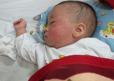 Cách chăm sóc trẻ sơ sinh bị bệnh sởi